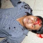 Brutal golpiza recibió un maestro de la Sección 22 por policías